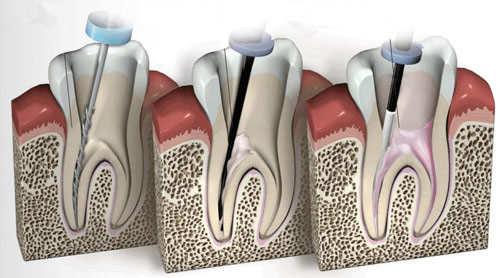 devitalizzazione-denti
